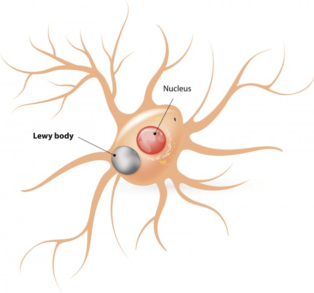 Lewy body disease